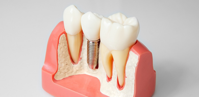 Стоматология будущего — воплощение мечты