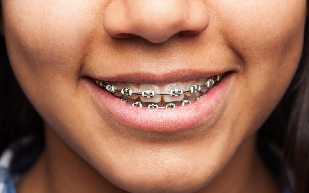 Разновидности брекетов в ортодонтическом лечении