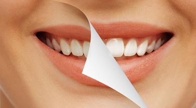 Необходимость ультразвуковой чистки в стоматологии