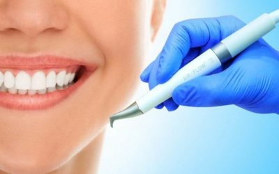 Профилактика  — обучение уходу за зубами