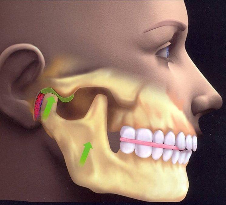 Гнатология в стоматологии