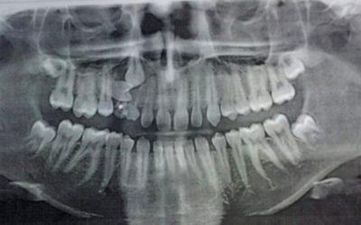 Остеомиелит челюсти: виды, симптомы, терапия
